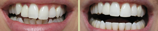 Before using Invisalign and after