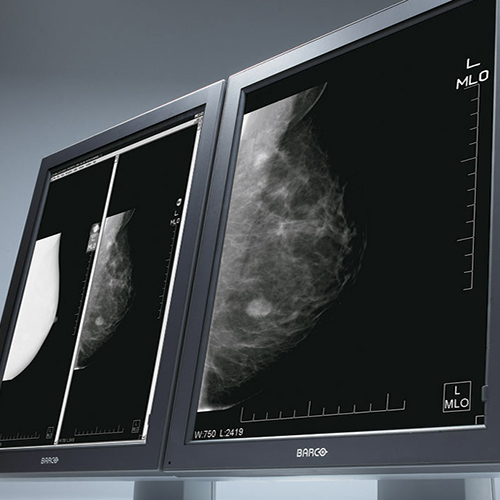 Telemammography