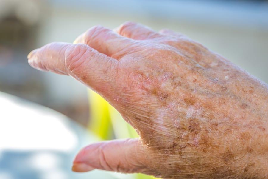 Home Care in Rancho Santa Fe CA: Melanoma in Seniors