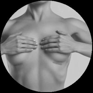 Breast Surgeon Brisbane