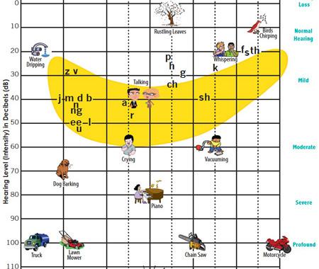 Hearing Level Chart