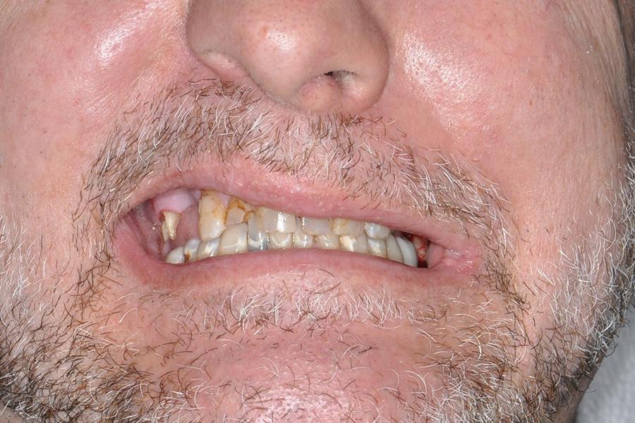 East Boca Dental