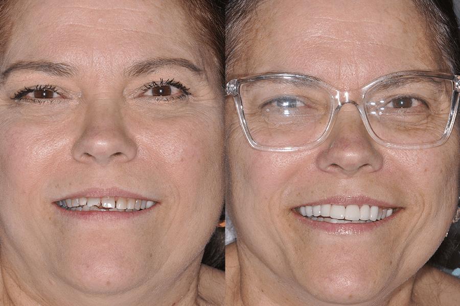 Steier Dental   Prosthetic Orthodontics