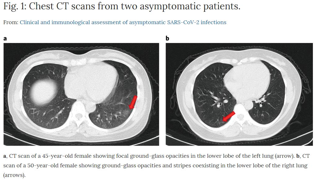 Asymptomatic Coronavirus Patients Show Lung Abnormalities on Chest CT scans--Including Ground-Glass Opacities and Stripes