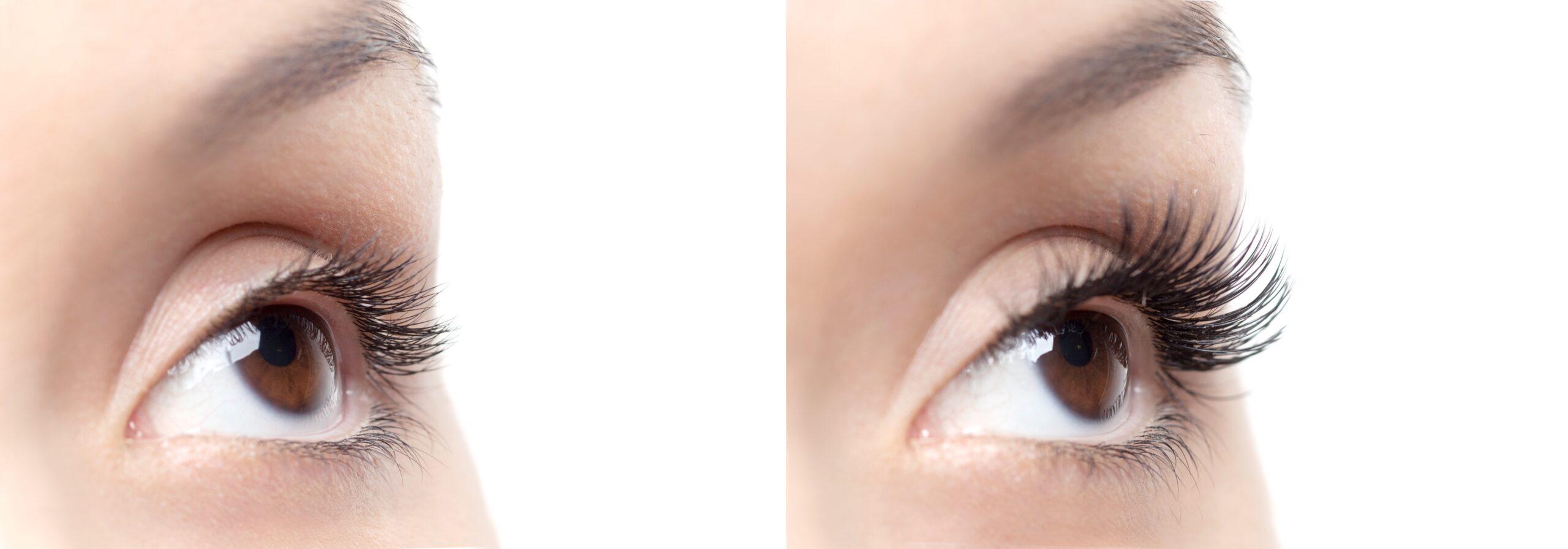 eyelash extension removal near me