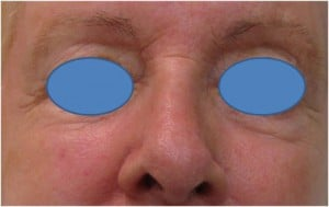 Juvederm-Filler-to-the-undereye-hollows-Before