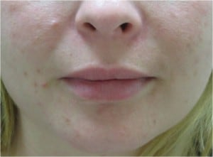 Juvederm for lip augmentation after