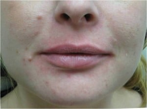 Juvederm for lip augmentation before