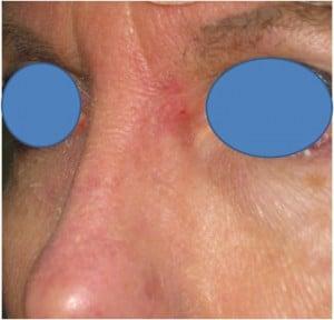 L-nasal-root-4-week-Mohs-followup