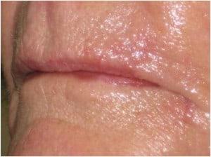 L-upper-lip-Mohs-followup