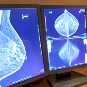Mammogram Results on Screen Being Reviewed For Breast Cancer.