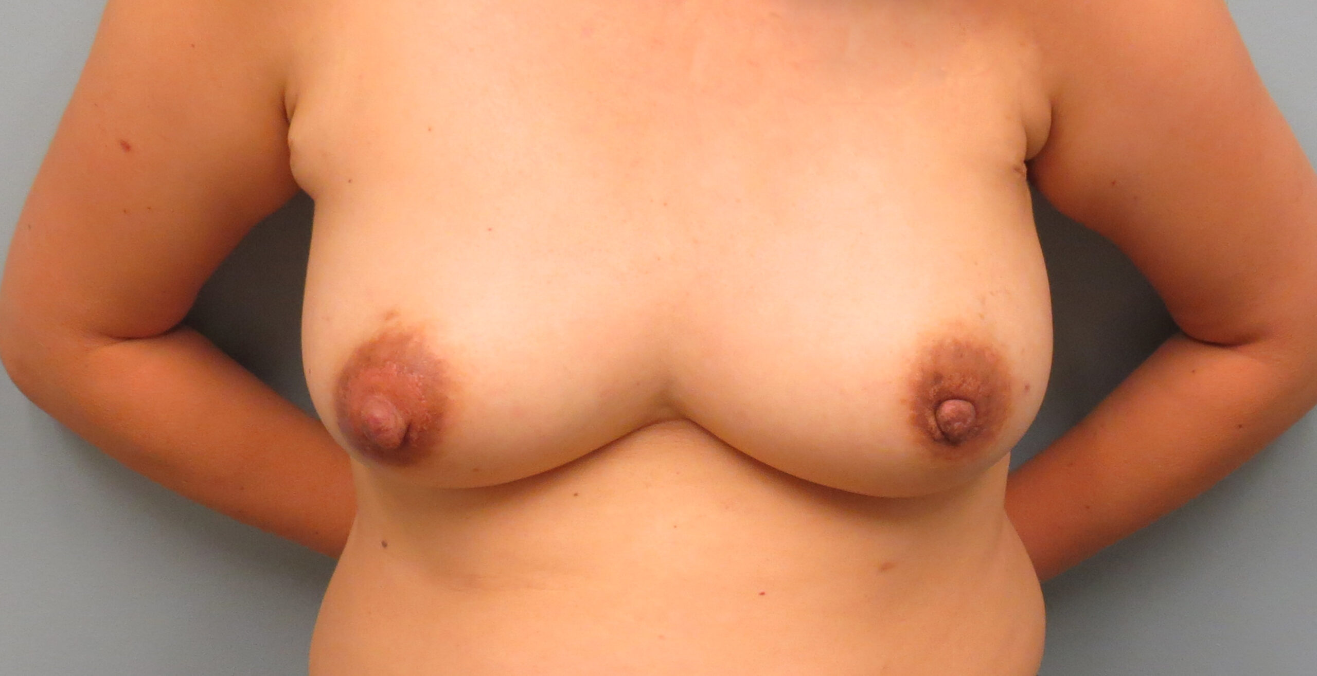 Woman who had a mastectomy with DIEP reconstruction she is standing with her top off to show what her breasts looked like before the mastectomy