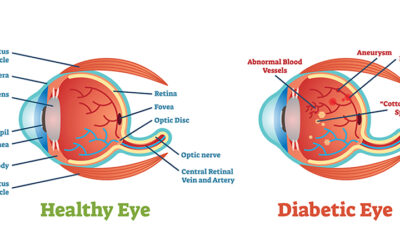 Dilation for Diabetes