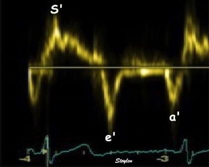 Tissue Doppler Imaging (TDI)