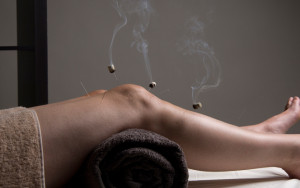 Acupuncture_London_Cupping_tuina_moxa._3jpg