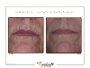 wrinkle reduction around mouth