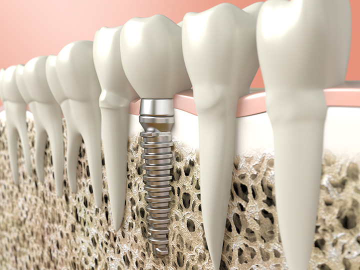 Dental Implants Toronto Dentist