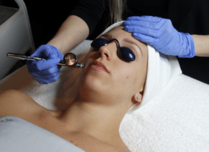 Oxygen Facial for Skincare