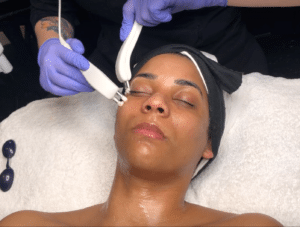 Microcurrent truly retrains the muscles to lift, tone, and form the skin.