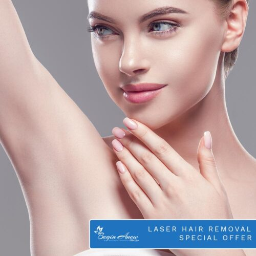 Laser Hair Removal Special Offer