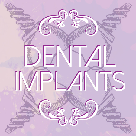 4 Facts about Dental Implants