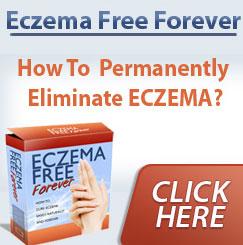 Eczema Free Forever Review – EczemaFreeForever.com a Scam?
