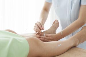 Dry Needling Camden leg pain relief