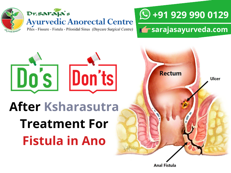 Dos and Don'ts After Ksharasutra Treatment For Fistula in Ano