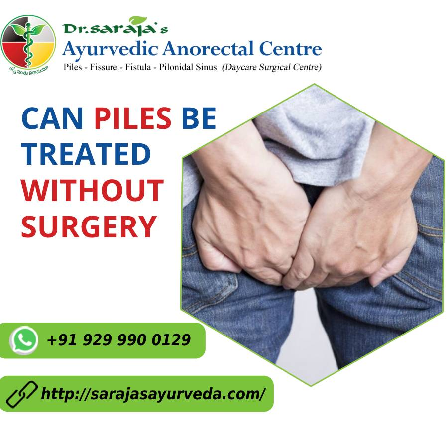 Can piles be treated without surgery
