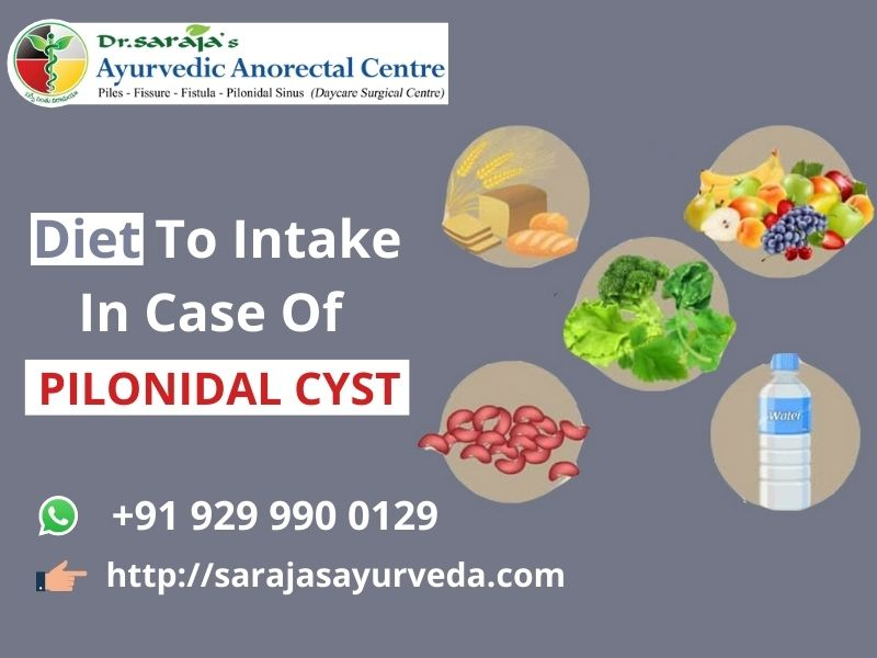 Diet To Intake In Case Of Pilonidal Cyst