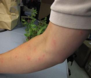 Florida Teen Tests Positive for Mosquito-Borne Keystone Virus