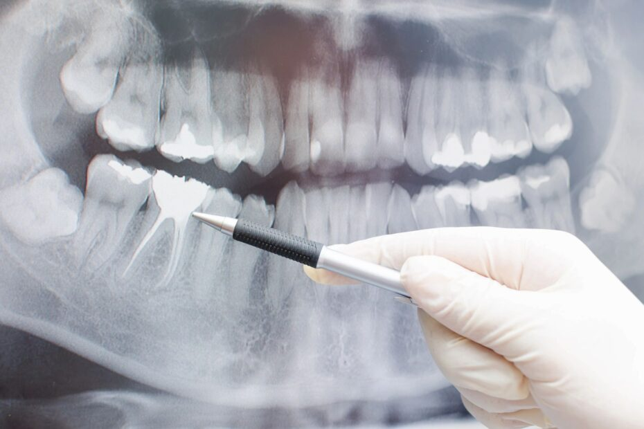 How To Market A Dental Clinic