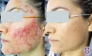 Before and after laser treatment for severe cystic acne on the left side of a female patient's face