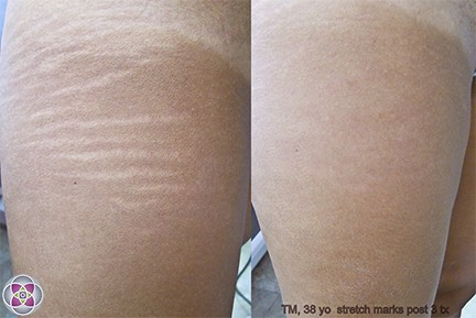 Before and after laser treatment to remove stretch marks