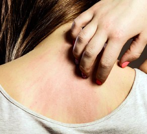Allergies and irritation are some of the physical effects of stress on the skin.