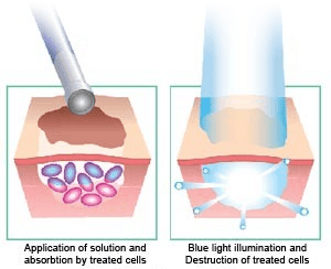 Photodynamic Acne Treatment - The ALA is applied to the skin and once absorbed, is activated with a specific wavelength of light in the blue spectrum.