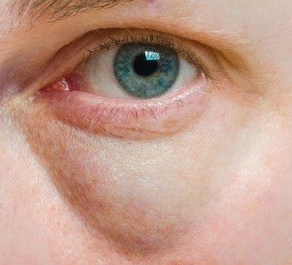 Puffy tired eyes are one of the effects of stress on the skin.