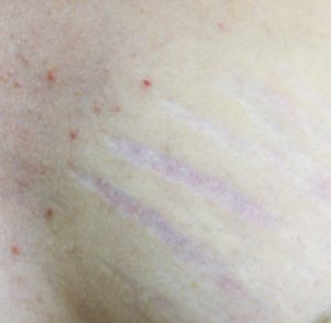 Pregnancy can cause stretch marks on the breast
