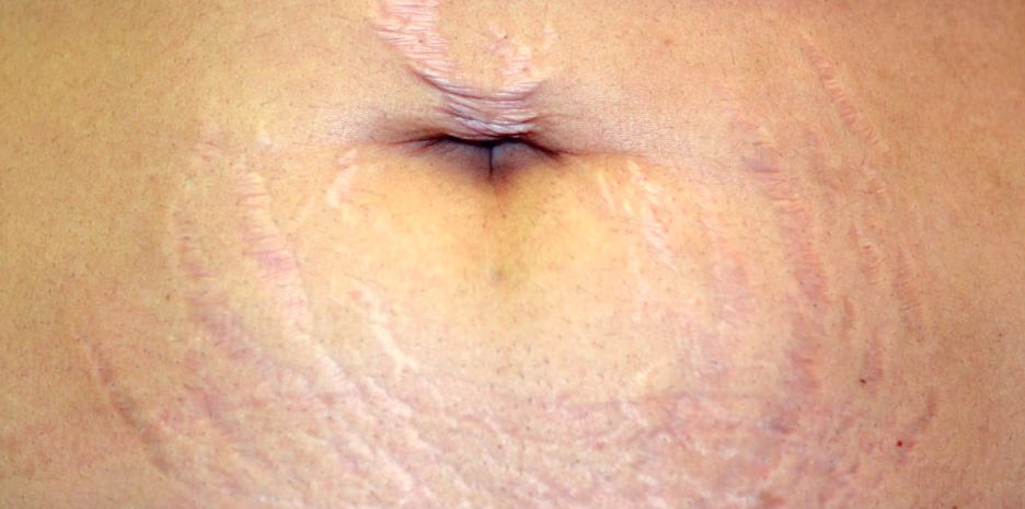 Stretch marks on the stomach caused by pregnancy