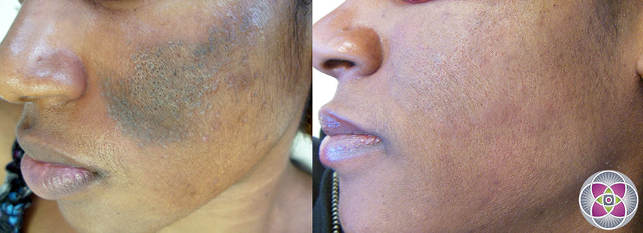 """Treating hyperpigmentation & melasma on dark """"ethnic"""" skin with lasers is very challenging. (Before and after photo of a successful treatment)"""