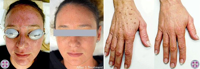 Before and after laser treatment to repair sun damaged skin.