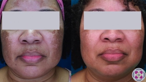 Before and after laser treatment for melasma on a patient with darker skin.