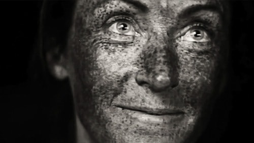 The effects of sun damage on the skin.