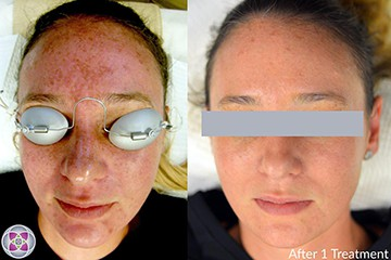 Before and After QDI Non-Surgical Facelift