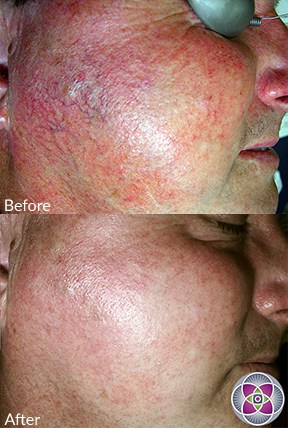 Lasers can eliminate the symptoms and also heal the cause of the rosacea