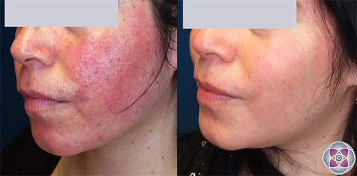 Before and After photo of a patient who underwent laser treatment for her rosacea.