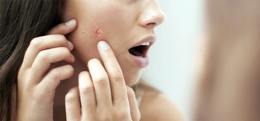 The best way to avoid and acne breakout is to know how your diet, foods, vitamins and probiotics effect the health of your skin