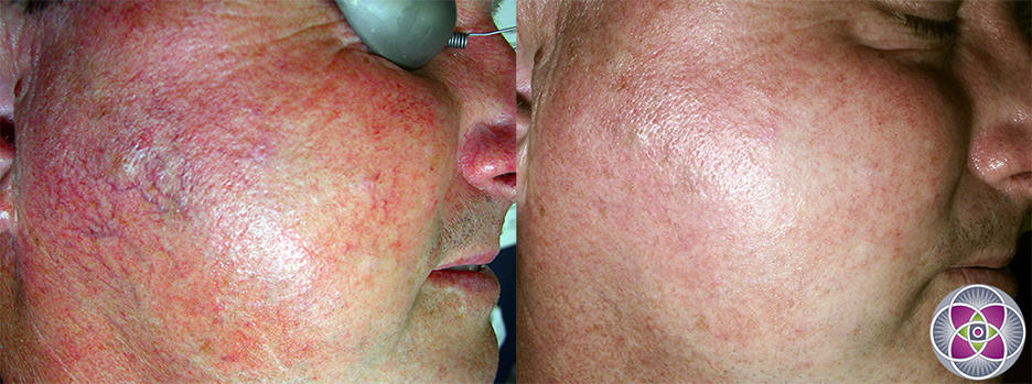 Laser treatments combined with other modalities are by far the best way to get rid of rosacea.