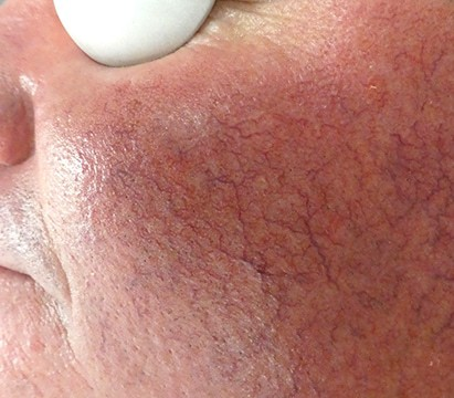 Telangiectasias (spider veins) are one of the symptoms of rosacea