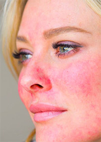 Easily blushing is an early sign of rosacea